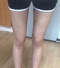 韩国美线整形吸脂瘦大腿前后恢复照片案例
