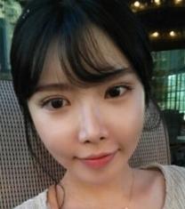韩国A特整形医院双眼皮+颧弓缩小前后对比照片