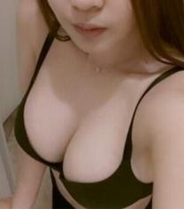 韩国A特整形医院假体隆胸术后对比照片