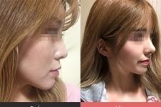 韩国鼻部整形专家名单,五位医生案例+背景大揭秘