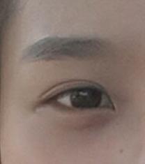韩国歌柔飞医院双眼皮案例对比