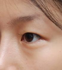 韩国妩丽医院双眼皮手术案例