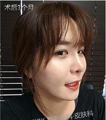韩国丽妍k线官方雕提升案例图