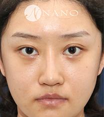 韩国nano鼻修复手术前后对比案例