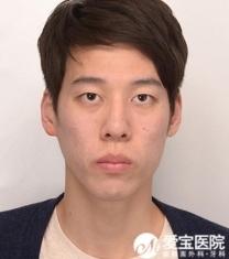 韩国爱宝整形医院男士双鄂手术前后对比照_术前