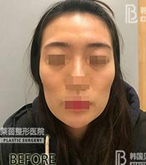 韩国贝缇莱茵医院面部脂肪填充