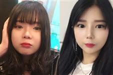 韩国普瑞美眼睛+鼻子+脂肪填充40天恢复日记案例展示