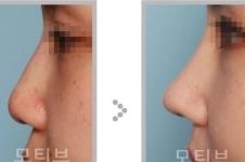 韩国motive整形怎么样,做眼鼻修复特色在哪里?