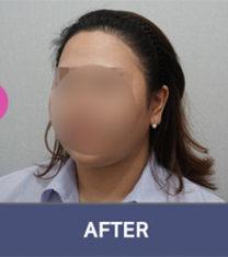 韩国moplus植发医院案例图