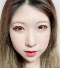 韩国本爱整形医院面部综合整形手术前后对比照片