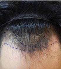 韩国moplus文珉善m型脱发治疗前术后照片