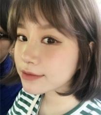 韩国高诺鼻整形外科塌鼻矫正手术照片