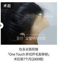 韩国永长医院发际线调整前后案例照片