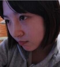 韩国高诺鼻医院福鼻整形手术前后对比照片_术后