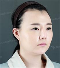 韩国JK发际线种植手术前后对比_术前