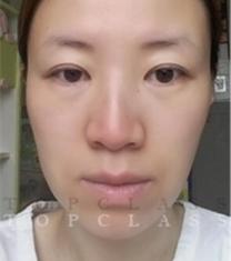 韩国顶级整形-韩国topclass立体隆鼻+面部提升手术前后对比照片