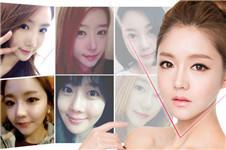 韩国必妩整形金泽钧和尹昌云谁手术更好?都有什么特色