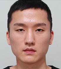 韩国佳轮韩男士轮廓+眼部整形案例图_术前