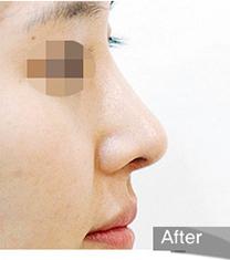 韩国olive驼峰鼻整形术后照片_术后