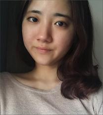 韩国omega童颜+鼻整形真人案例对比_术前
