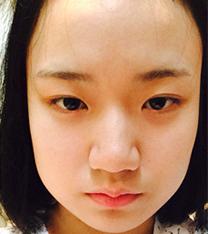 韩国omega面部吸脂+鼻整形真人对比