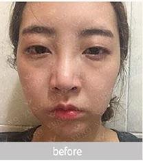 朱诺鼻金院长隆鼻前后3个月恢复照片