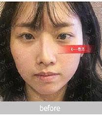 韩国朱诺歪鼻矫正案例前后照_术前