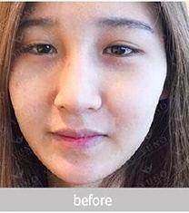 韩国朱诺宽鼻子矫正官网3个月恢复日记