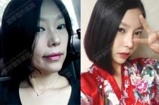整形日记:爱婷吴珉脂肪填充手术3个月恢复照片