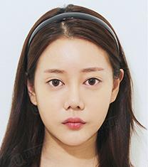 韩国优尼克眼鼻修复手术前后案例对比图_术前