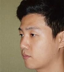 韩国可安美(CNM)男士鼻整形案例