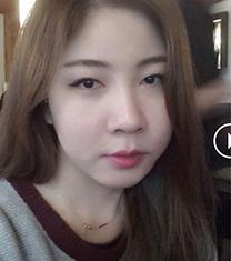 韩国GK医院眼鼻综合整形真人前后对比图