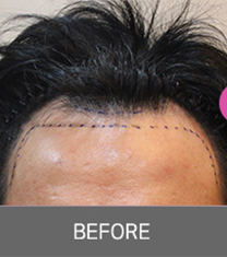 韩国moplus医院植发前后对比图