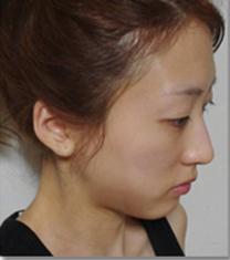 金翰星面部脂肪填充+双眼皮修复案例图