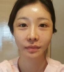 韩国维摩整形外科-韩国维摩整形医院全脸脂肪填充前后照片