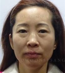 韩国高恩世上面部抗衰老提升整形前后照片_术前