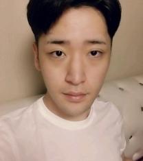 韩国朱诺整形双眼皮矫正前后照片