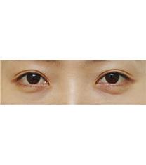 韩国金翰星上睑下垂矫正前后对比案例
