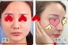 金孝宪在韩国有名气吗?做鼻子什么风格?