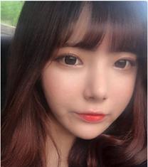 韩国omega童颜+鼻整形真人案例对比_术后
