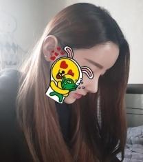 韩国博朗温李政勋院长鹰钩鼻矫正前后照片