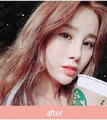 韩国朱诺鼻子修复整形官网案例
