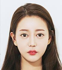 韩国优尼克眼鼻修复手术前后案例对比图_术后