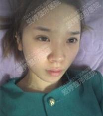 韩国ITEM整形医院-韩国爱婷眼鼻轮廓整形前后对比照片