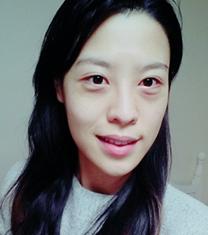 韩国玛博尔医院面部脂肪填充案例