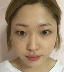 韩国ITEM整形医院-爱婷整形医院面部综合手术前后照片