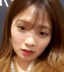 韓國ITEM整形醫院-愛婷面部童顏脂肪移植+眼鼻整形前后對比照片