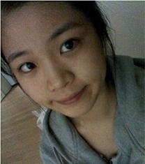 AHN安晟凤鼻部整形前后对比案例