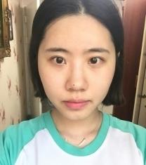 韩国必妩额头填充面部轮廓手术前后对比照片