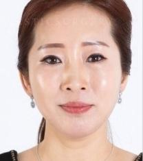韩国高恩世上面部抗衰老提升整形前后照片_术后